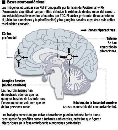 cerebro TOC